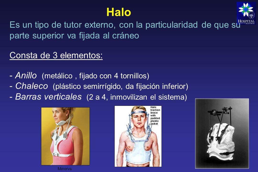 Halo Es un tipo de tutor externo, con la particularidad de que su parte superior va fijada al cráneo.