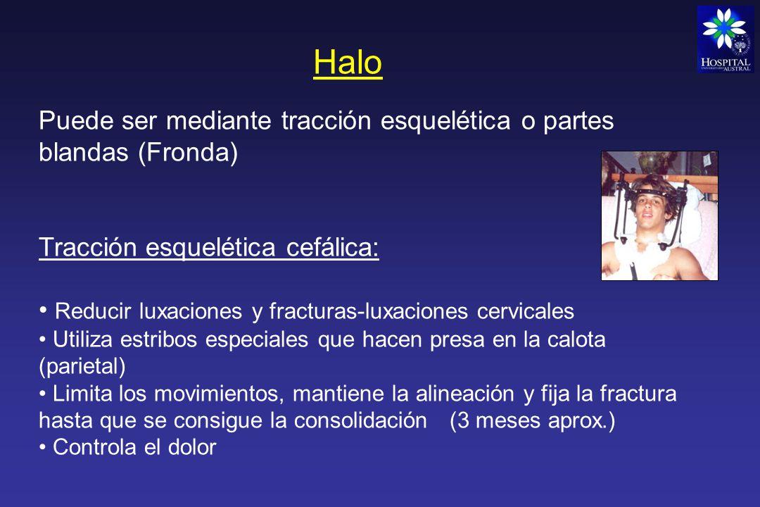 Halo Puede ser mediante tracción esquelética o partes blandas (Fronda)