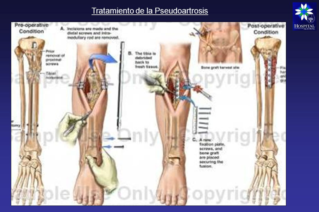 Tratamiento de la Pseudoartrosis