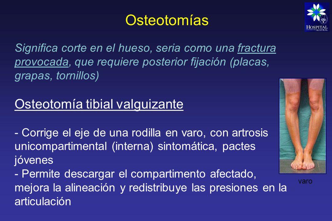 Osteotomías Osteotomía tibial valguizante