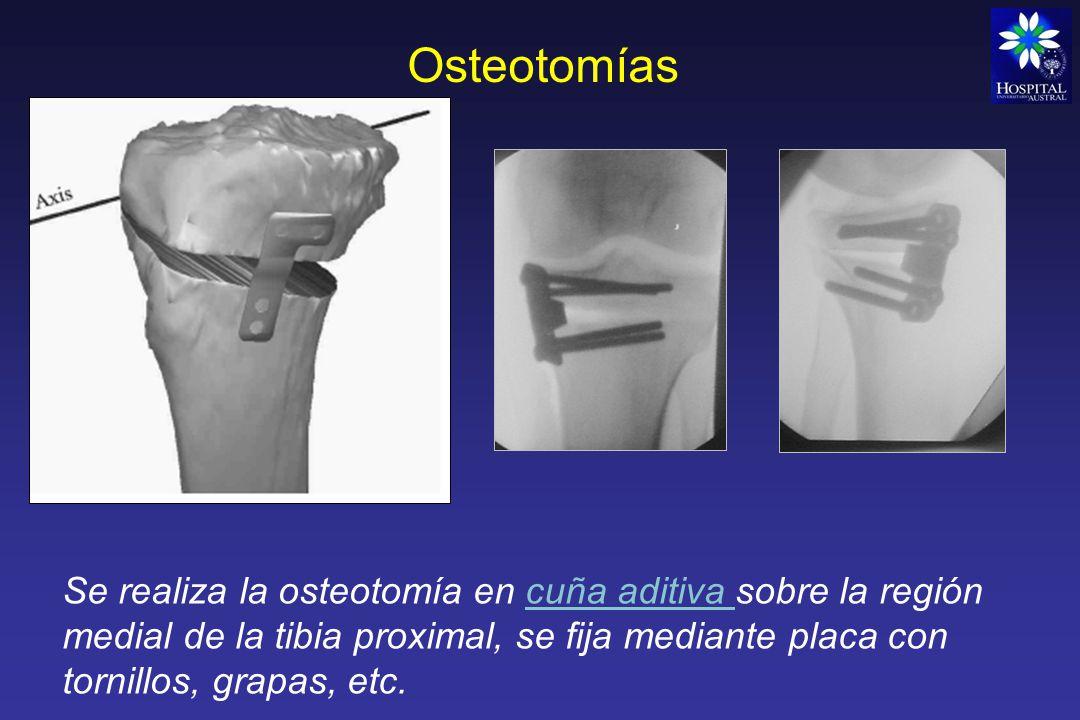Osteotomías Se realiza la osteotomía en cuña aditiva sobre la región medial de la tibia proximal, se fija mediante placa con tornillos, grapas, etc.