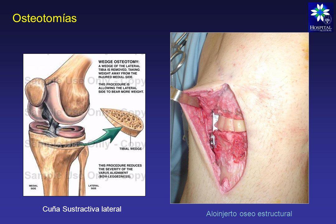 Osteotomías Cuña Sustractiva lateral Aloinjerto oseo estructural