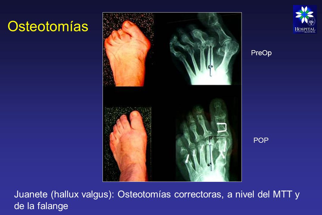 Osteotomías PreOp. POP.