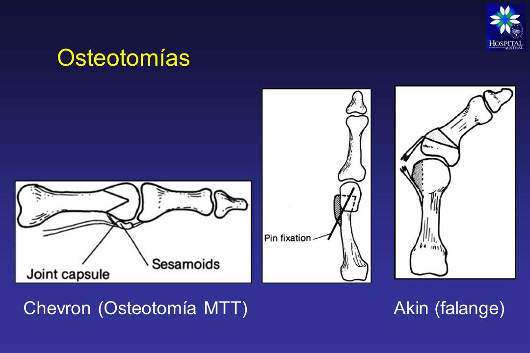 Osteotomías Chevron (Osteotomía MTT) Akin (falange)