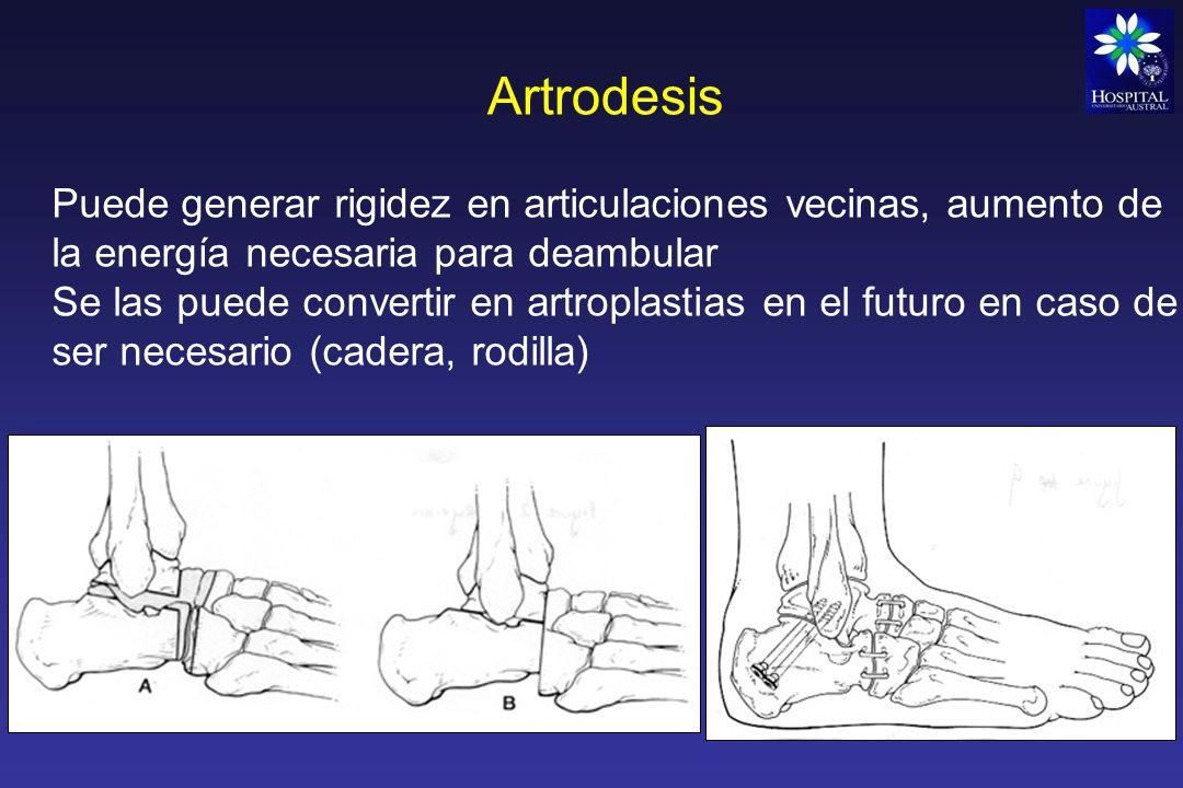 Artrodesis Puede generar rigidez en articulaciones vecinas, aumento de la energía necesaria para deambular.