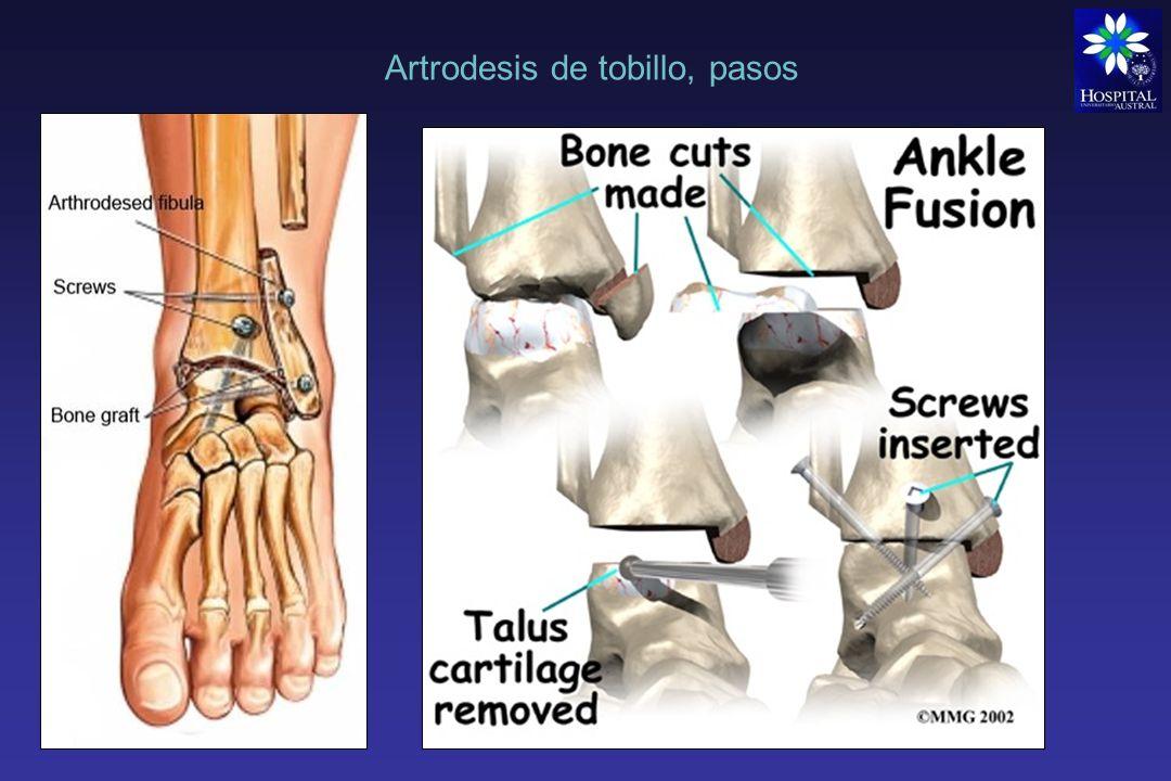 Artrodesis de tobillo, pasos