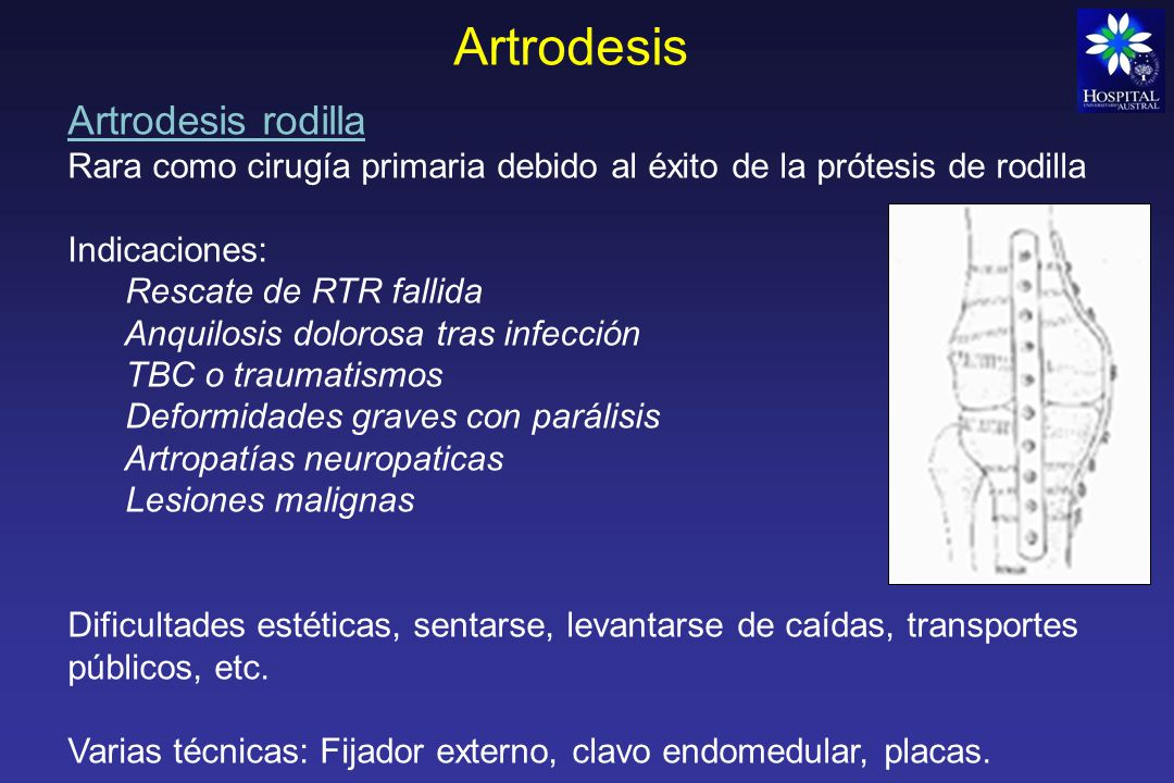 Artrodesis Artrodesis rodilla