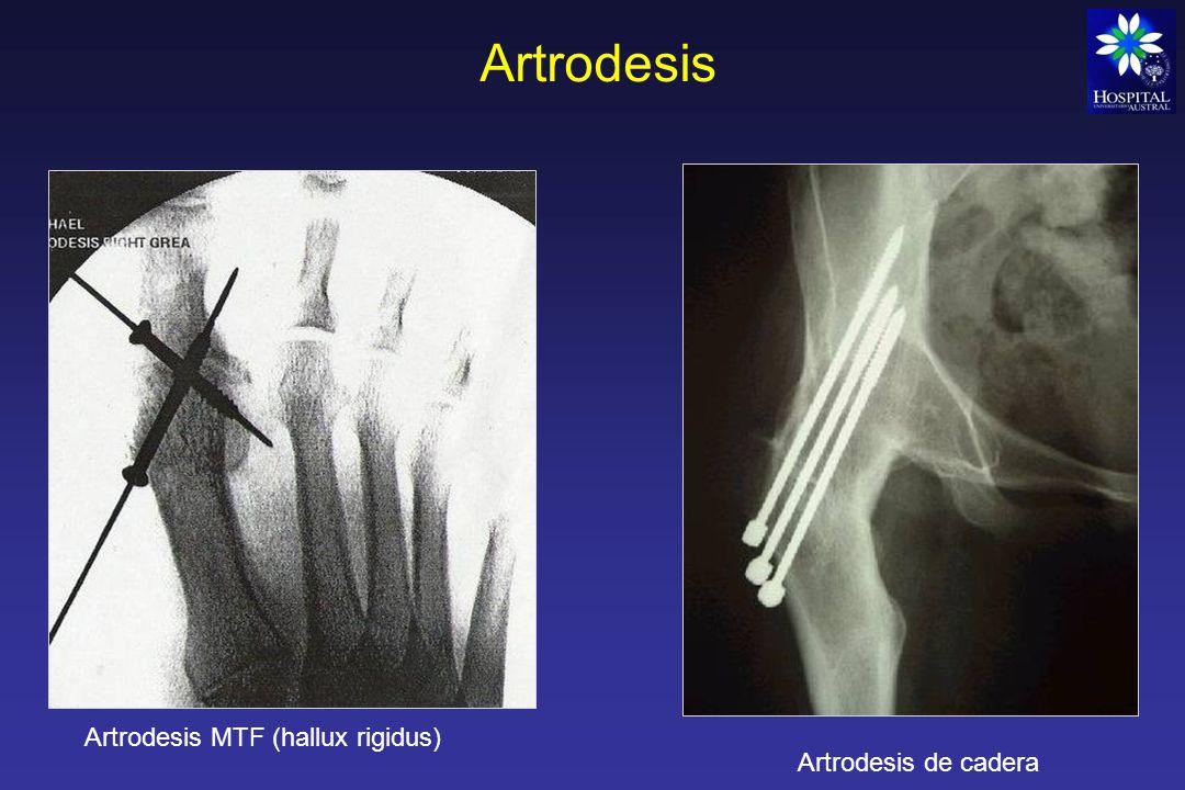 Artrodesis Artrodesis MTF (hallux rigidus) Artrodesis de cadera
