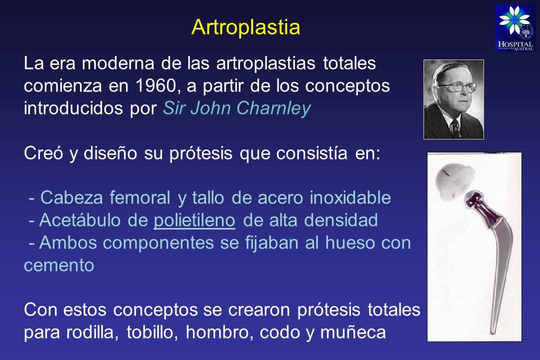 Artroplastia La era moderna de las artroplastias totales comienza en 1960, a partir de los conceptos introducidos por Sir John Charnley.