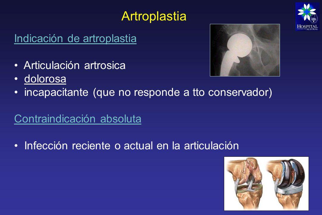 Artroplastia Indicación de artroplastia Articulación artrosica
