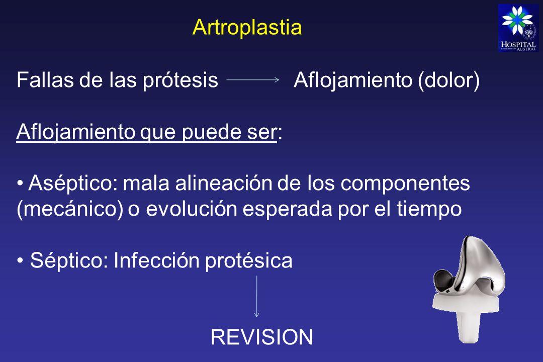 Artroplastia Fallas de las prótesis Aflojamiento (dolor) Aflojamiento que puede ser: