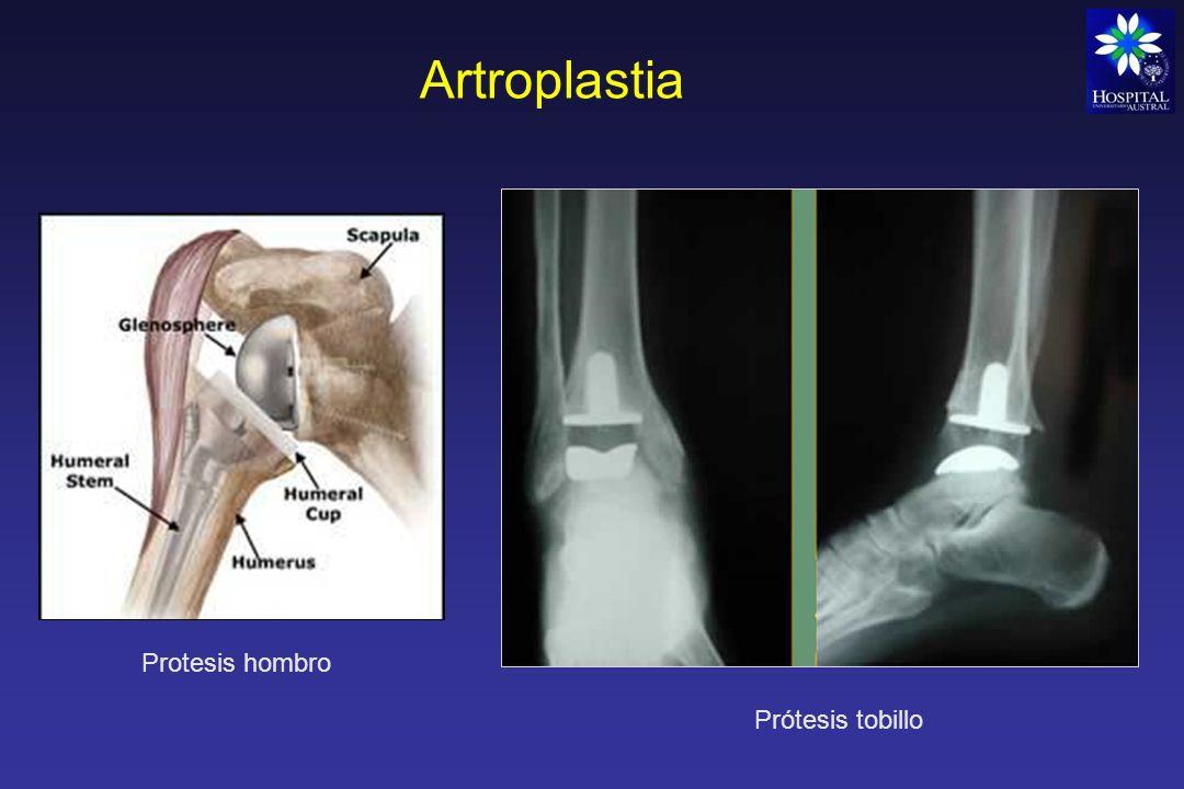 Artroplastia Protesis hombro Prótesis tobillo