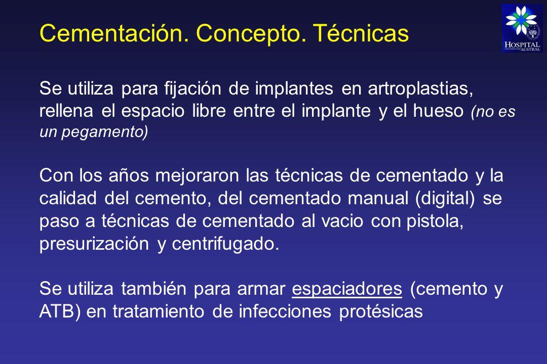 Cementación. Concepto. Técnicas