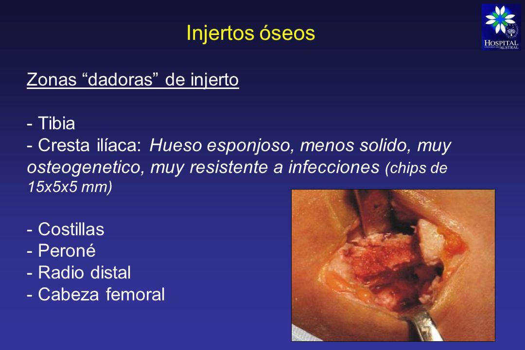 Injertos óseos Zonas dadoras de injerto Tibia