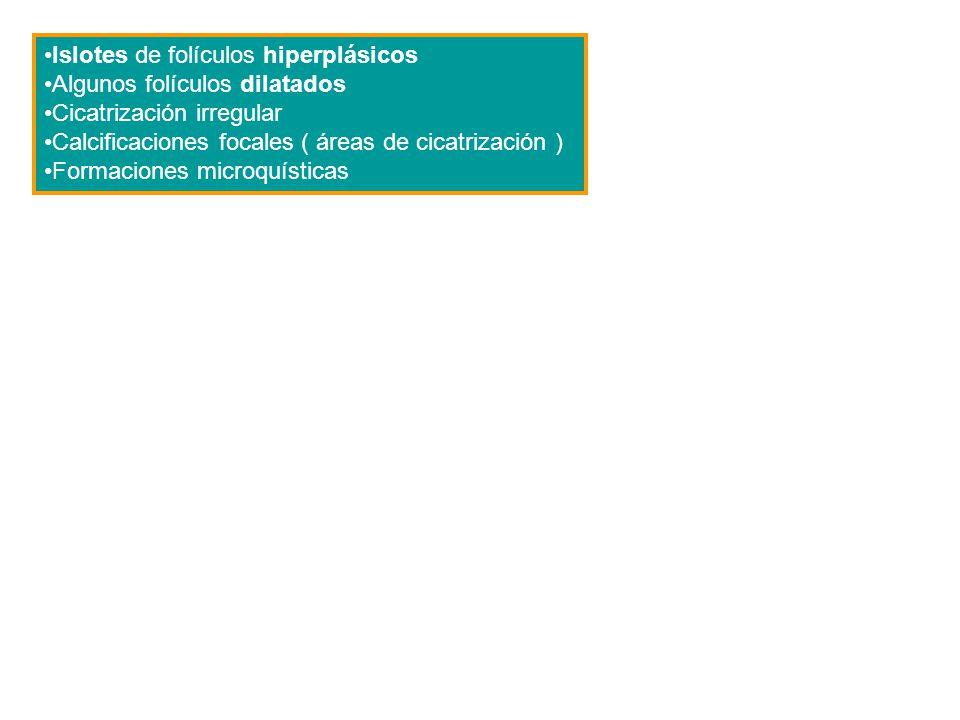 Islotes de folículos hiperplásicos