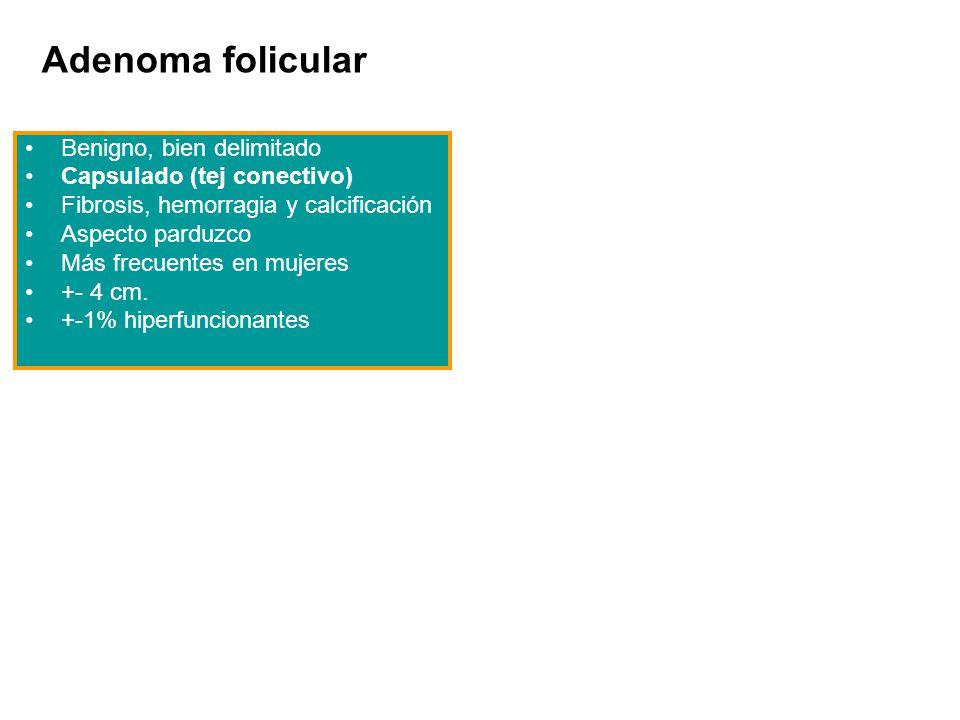 Adenoma folicular Benigno, bien delimitado Capsulado (tej conectivo)