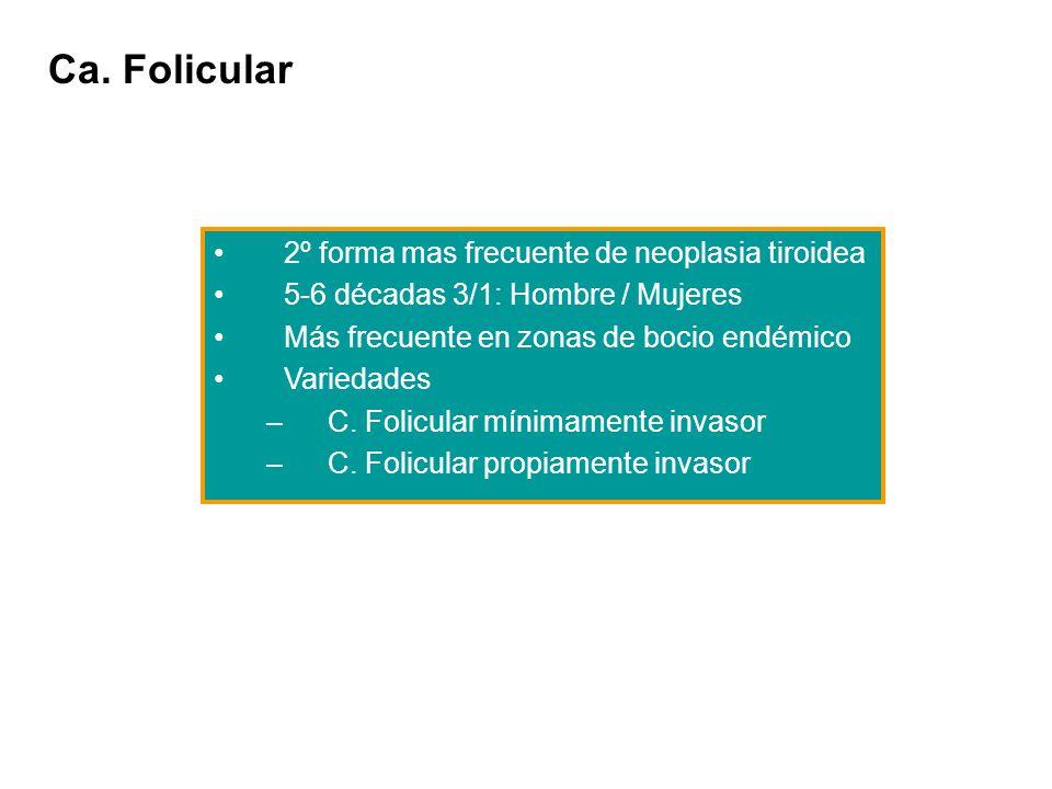 Ca. Folicular 2º forma mas frecuente de neoplasia tiroidea