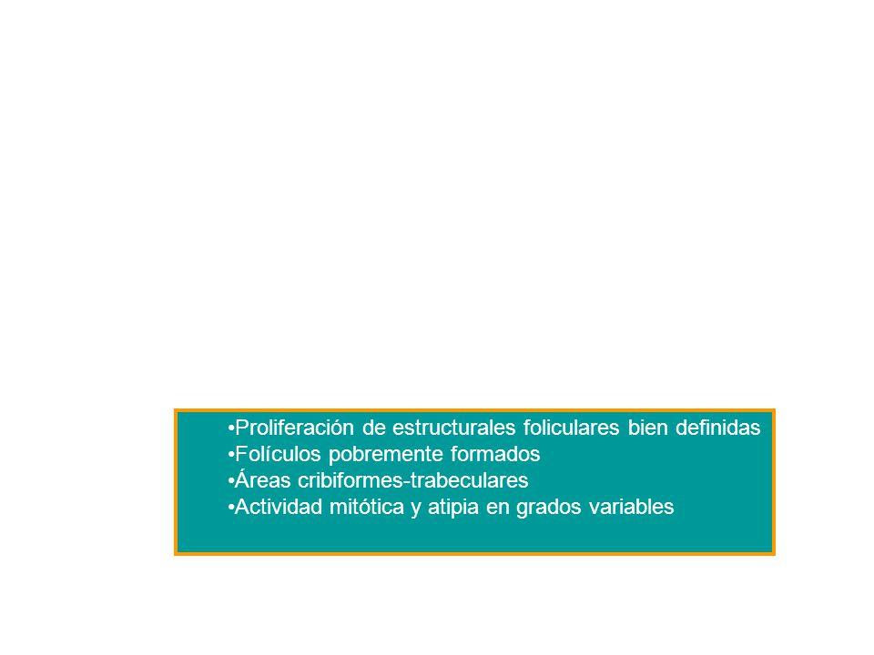 Proliferación de estructurales foliculares bien definidas