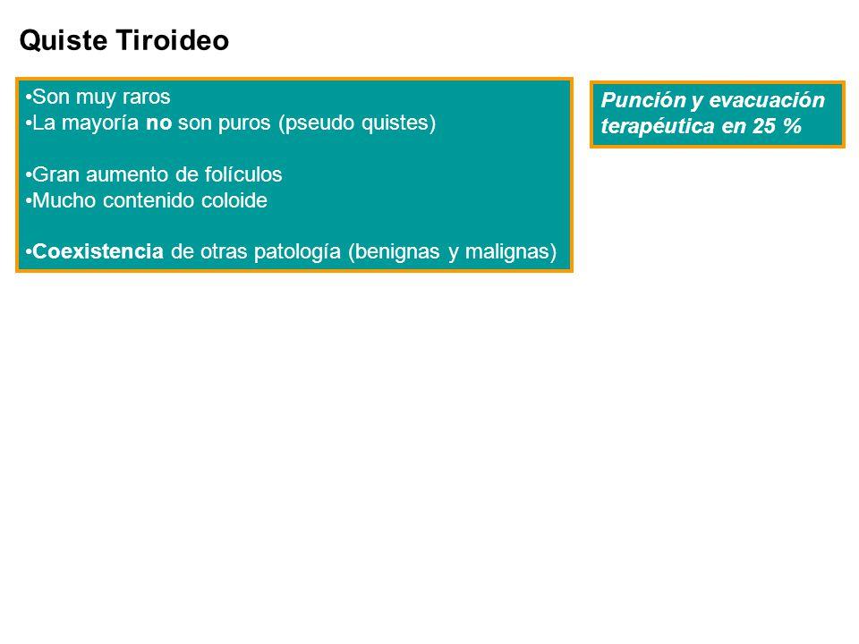 Quiste Tiroideo Son muy raros Punción y evacuación