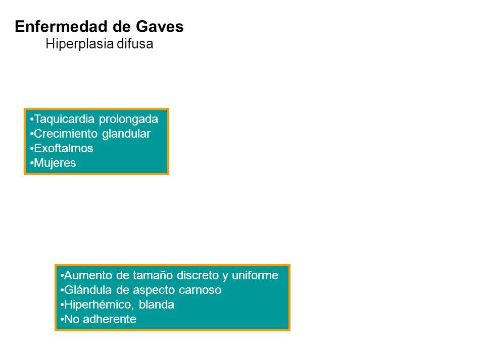 Enfermedad de Gaves Hiperplasia difusa Taquicardia prolongada