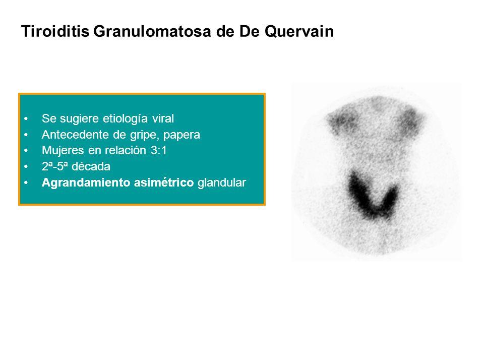 Tiroiditis Granulomatosa de De Quervain