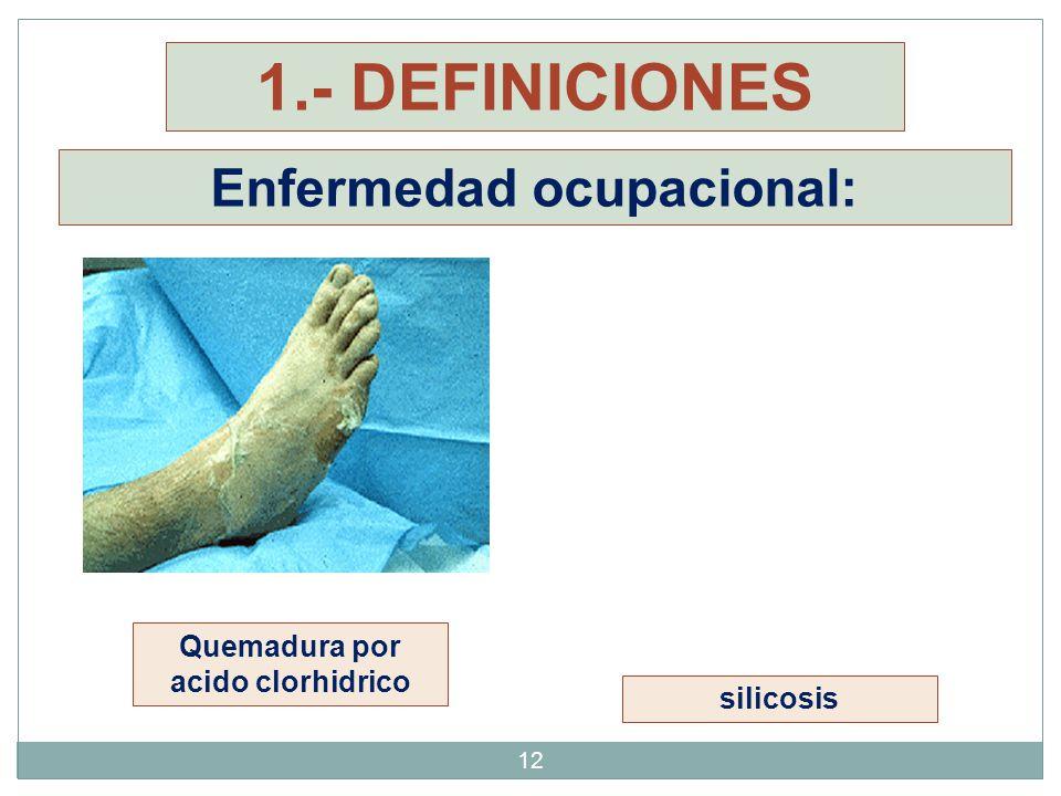 Enfermedad ocupacional: Quemadura por acido clorhidrico