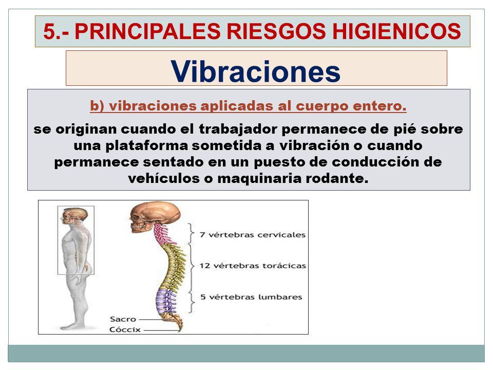 Vibraciones 5.- PRINCIPALES RIESGOS HIGIENICOS