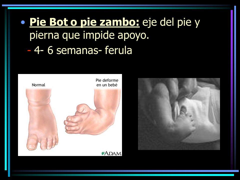 Pie Bot o pie zambo: eje del pie y pierna que impide apoyo.