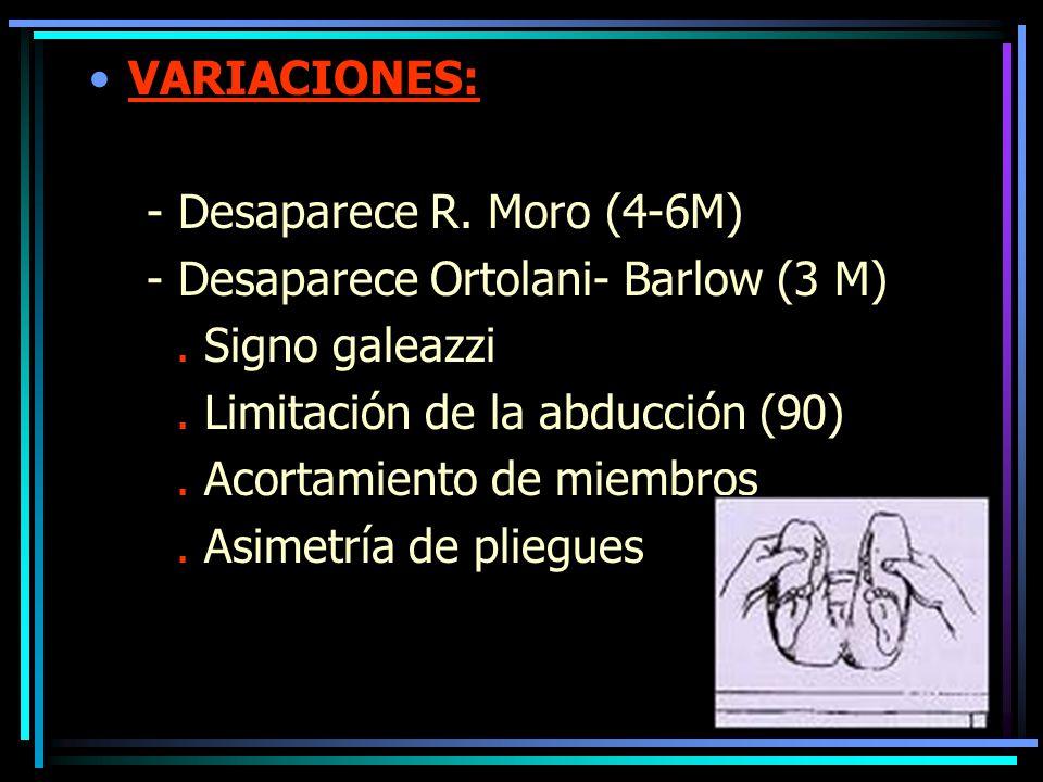 VARIACIONES: - Desaparece R. Moro (4-6M) - Desaparece Ortolani- Barlow (3 M) . Signo galeazzi. . Limitación de la abducción (90)