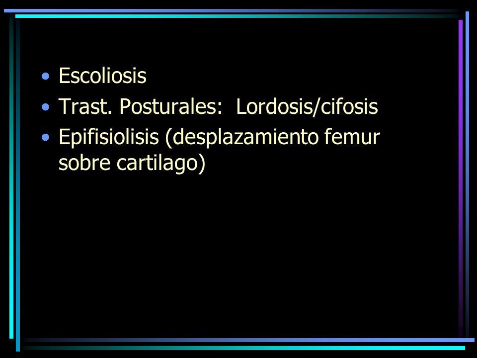 Escoliosis Trast. Posturales: Lordosis/cifosis.