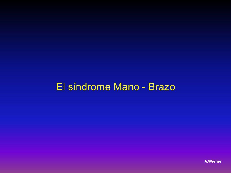 El síndrome Mano - Brazo