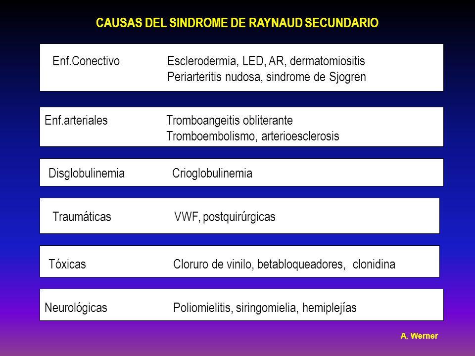 CAUSAS DEL SINDROME DE RAYNAUD SECUNDARIO