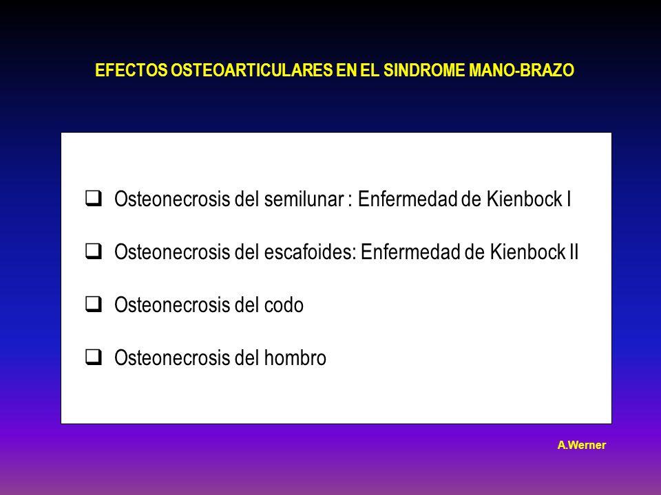 Osteonecrosis del semilunar : Enfermedad de Kienbock I