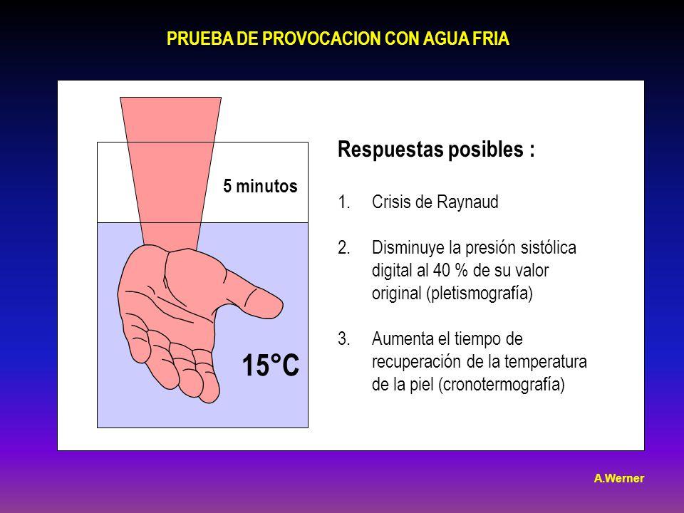 15°C Respuestas posibles : PRUEBA DE PROVOCACION CON AGUA FRIA