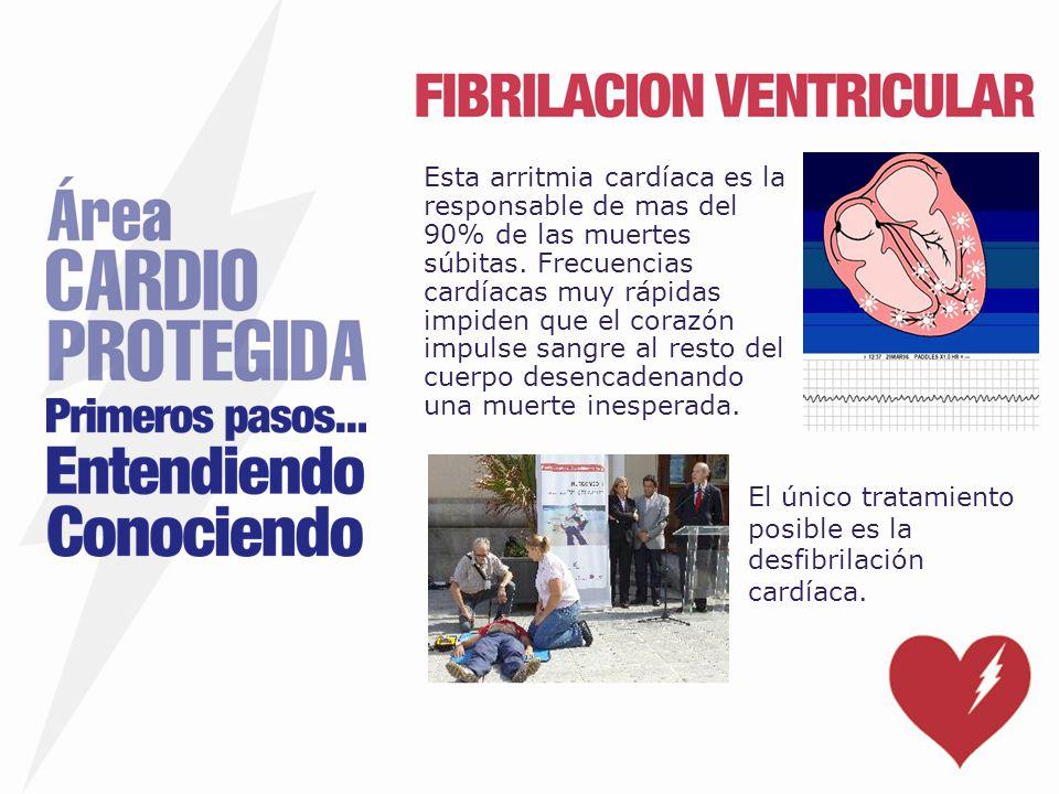 Esta arritmia cardíaca es la responsable de mas del 90% de las muertes súbitas. Frecuencias cardíacas muy rápidas impiden que el corazón impulse sangre al resto del cuerpo desencadenando una muerte inesperada.