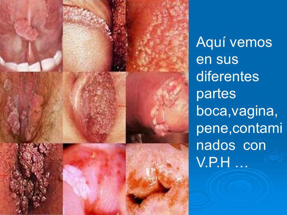 Aquí vemos en sus diferentes partes boca,vagina,pene,contaminados con V.P.H …