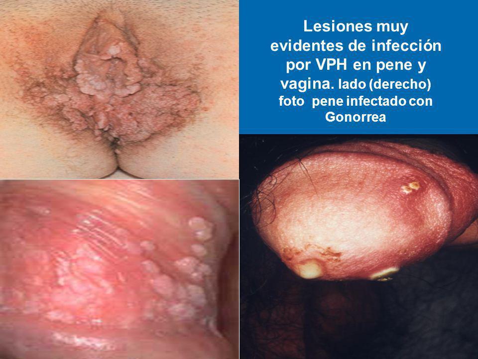 Lesiones muy evidentes de infección por VPH en pene y vagina