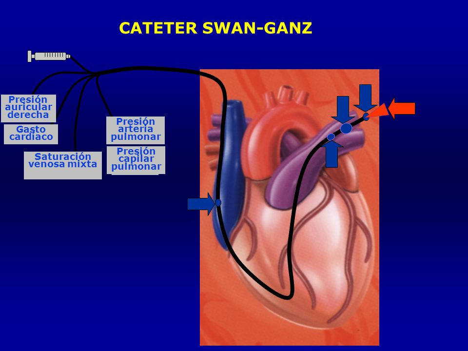 CATETER SWAN-GANZ Presión auricular derecha Presión arteria Gasto
