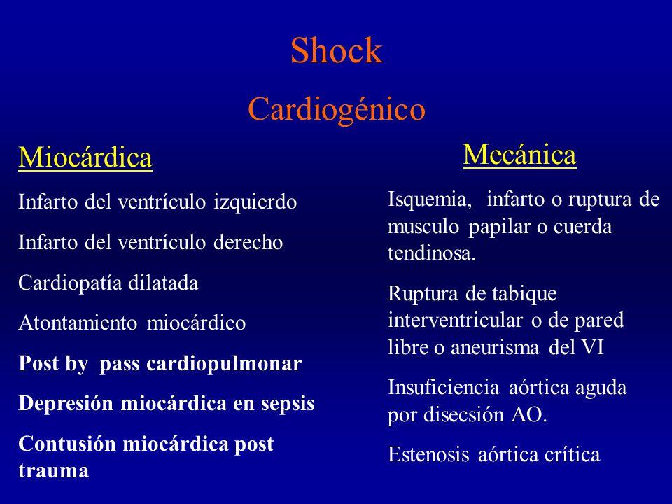 Shock Cardiogénico Mecánica Miocárdica