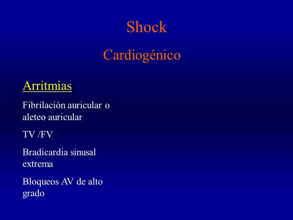 Shock Cardiogénico Arritmias Fibrilación auricular o aleteo auricular
