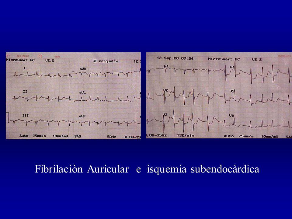 Fibrilaciòn Auricular e isquemia subendocàrdica