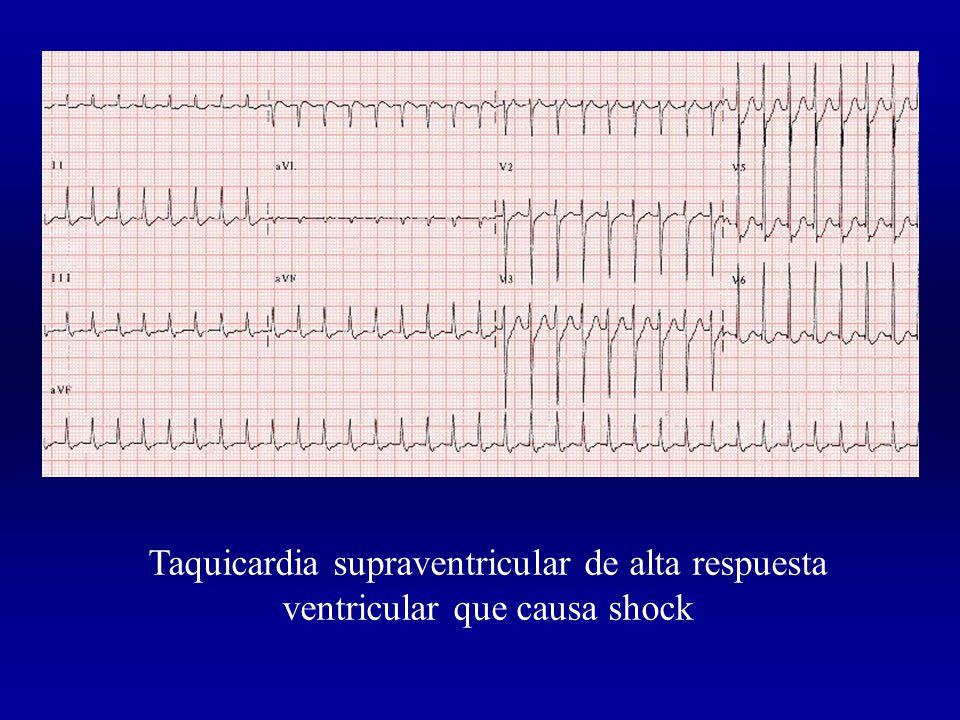 Taquicardia supraventricular de alta respuesta ventricular que causa shock