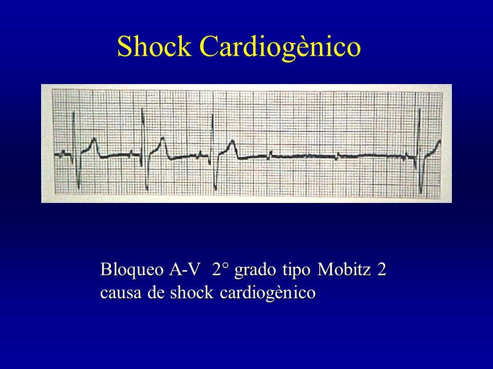 Shock Cardiogènico Bloqueo A-V 2° grado tipo Mobitz 2