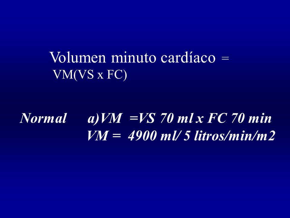 Volumen minuto cardíaco =