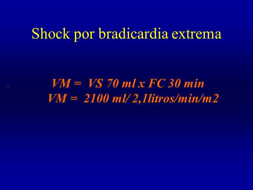 Shock por bradicardia extrema