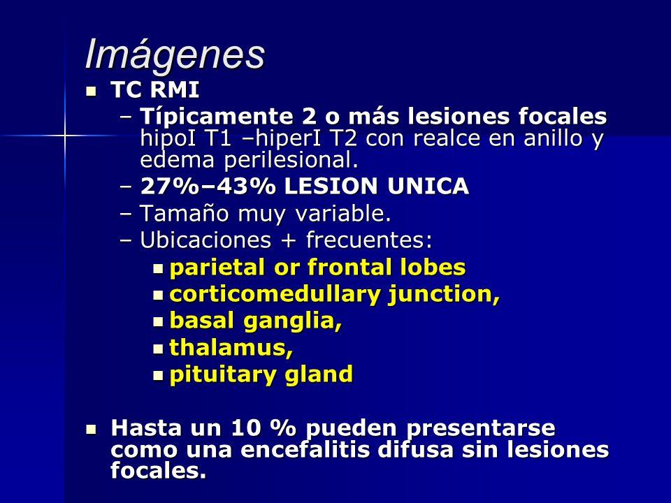 Imágenes TC RMI. Típicamente 2 o más lesiones focales hipoI T1 –hiperI T2 con realce en anillo y edema perilesional.