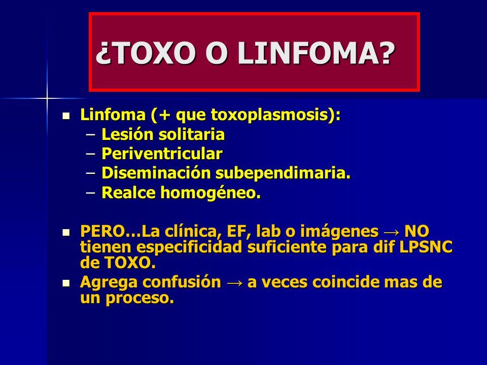 ¿TOXO O LINFOMA Linfoma (+ que toxoplasmosis): Lesión solitaria