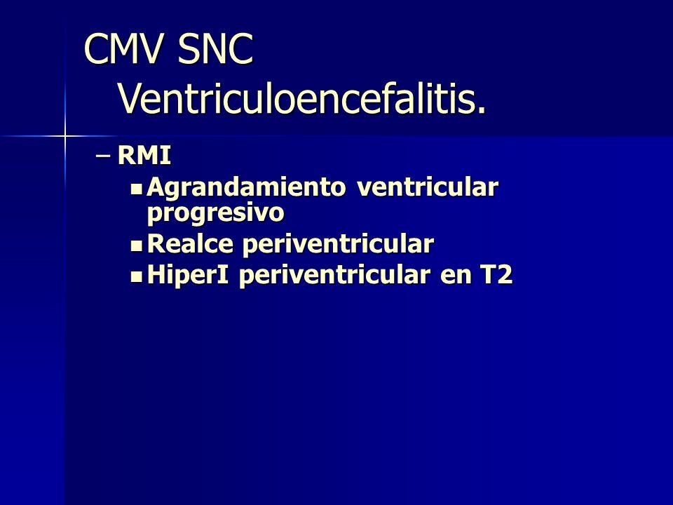 Ventriculoencefalitis.