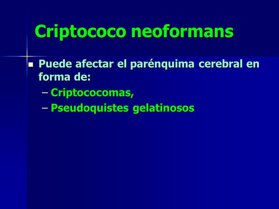 Criptococo neoformans