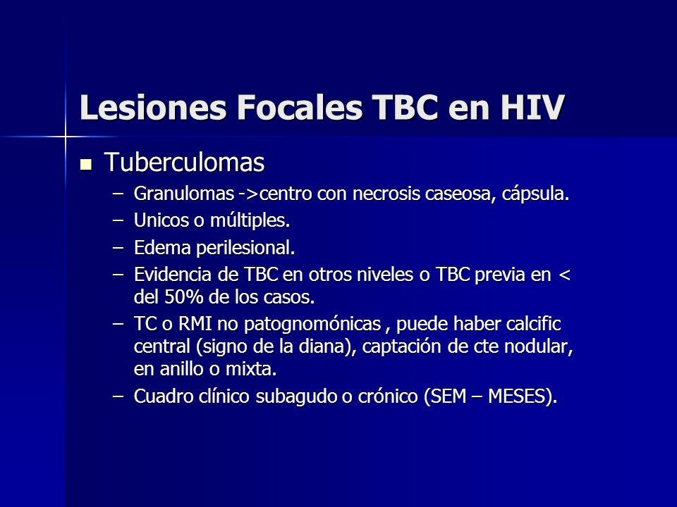 Lesiones Focales TBC en HIV